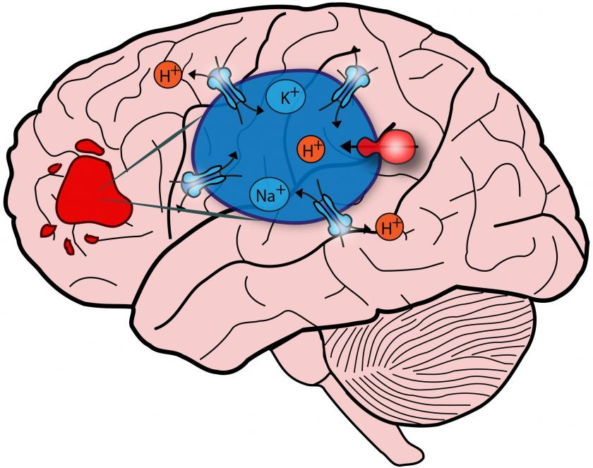 Autism clipart autism brain. Meets glioblastoma novel strategy