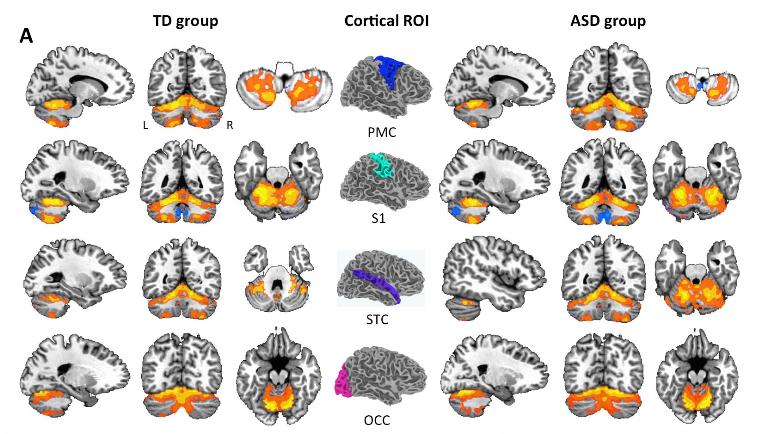 New connectivity findings suggest. Autism clipart autism brain