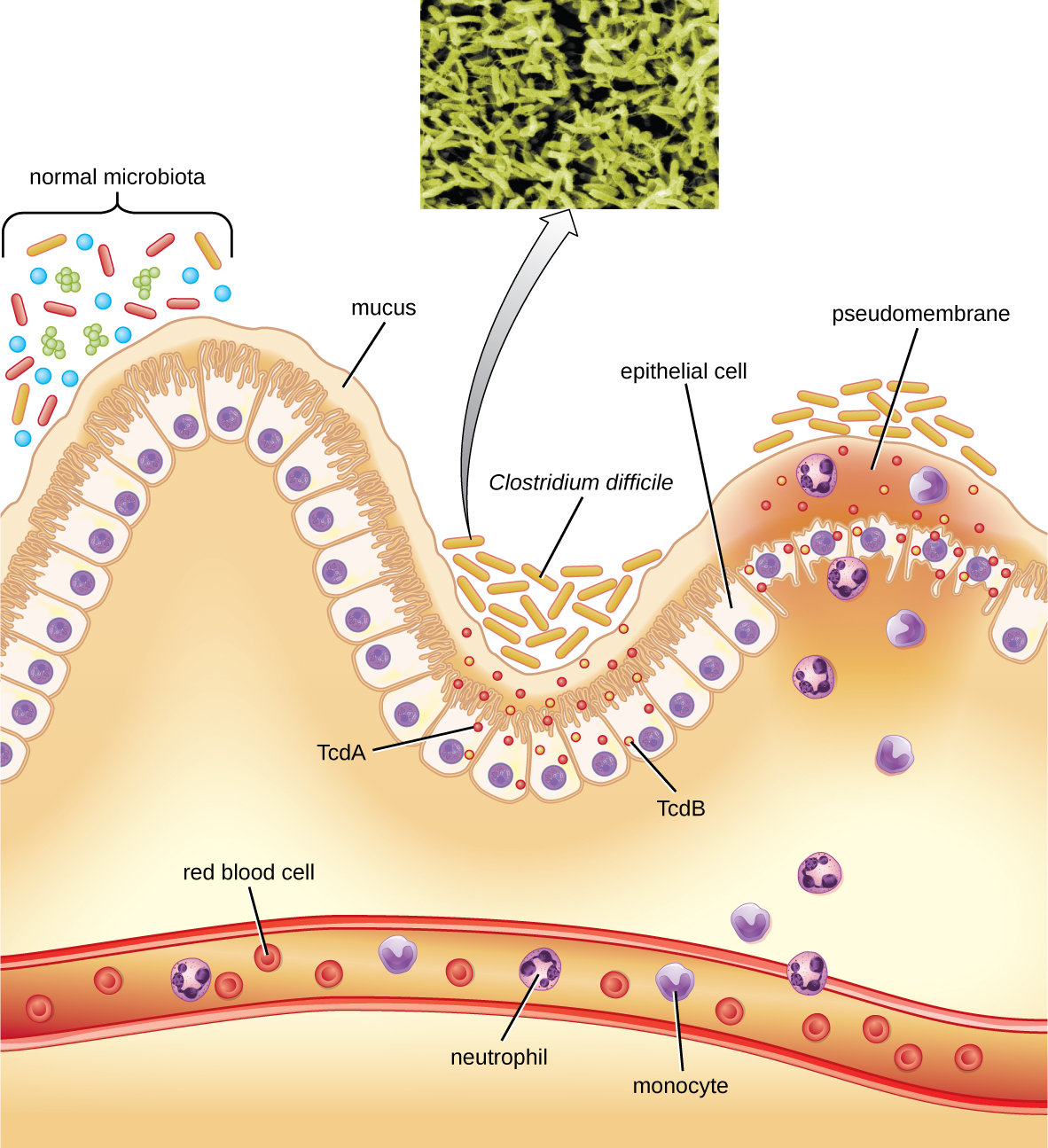 bacterial infections of. Bacteria clipart cholera