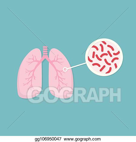 Vector lungs of infected. Bacteria clipart tuberculosis bacteria