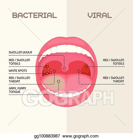 Vector stock throat bacterial. Bacteria clipart viral infection