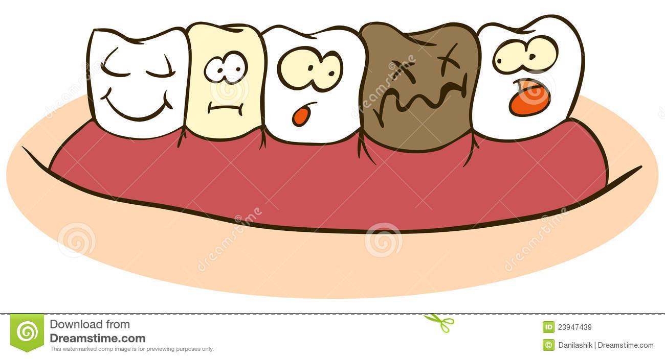 Bad clipart cartoon. Decay unhealthy tooth pencil