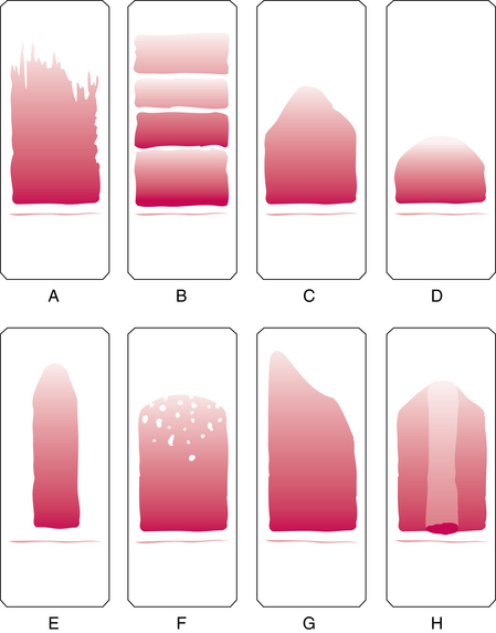 Blood clipart blood smear. Introduction to peripheral examination