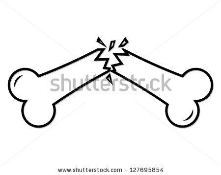 Broken clipartmonk free clip. Bone clipart animated
