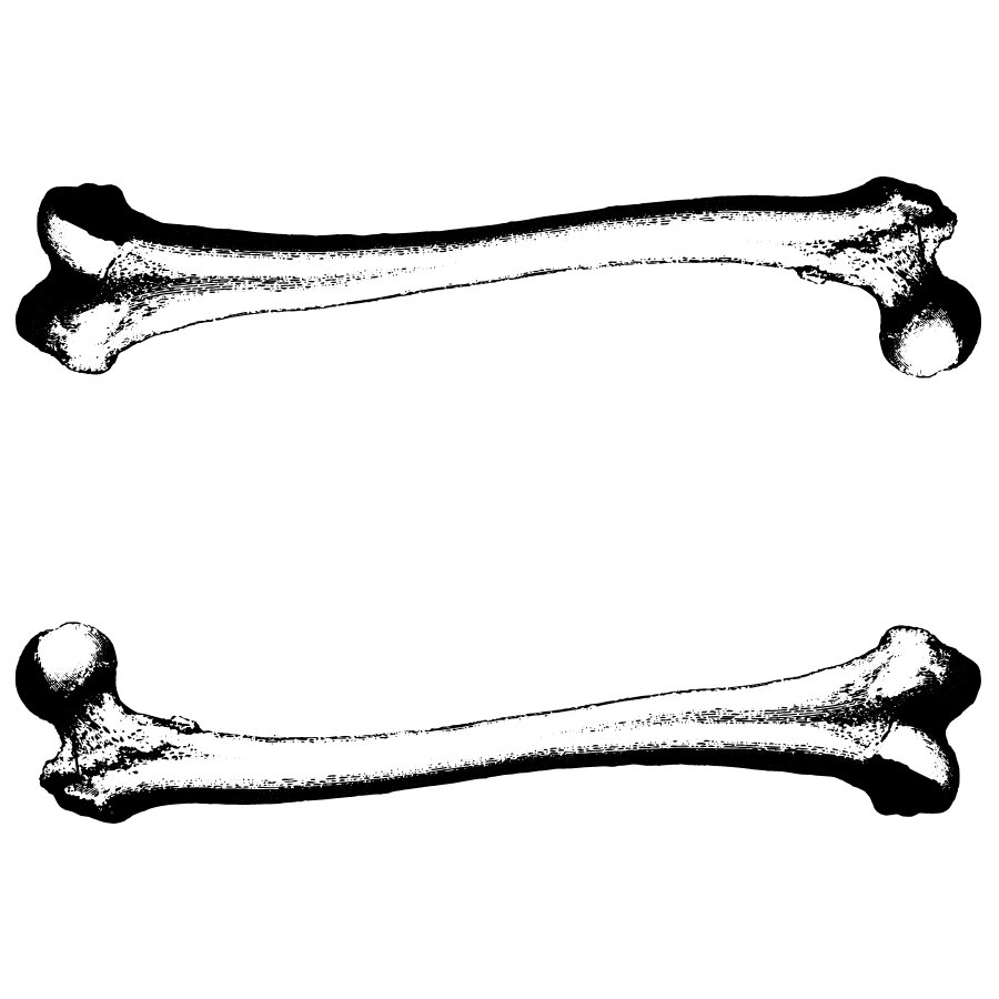 Bone clipart black and white. Arm in about broken