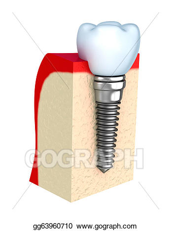 Bone clipart bone tooth. Dental implant in jaw