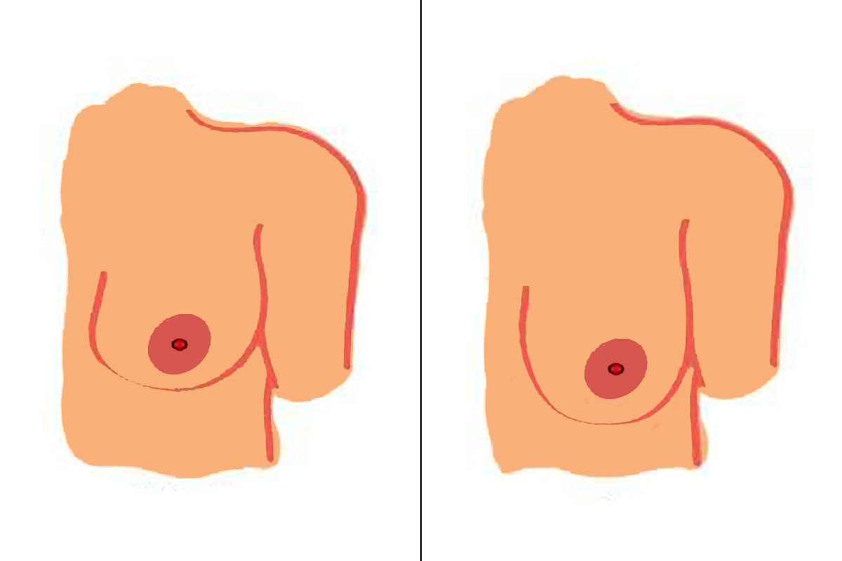 Breast augmentation pros cons. Boobs clipart enlarged