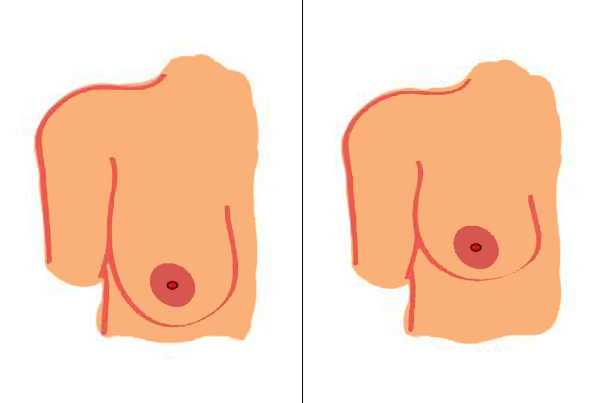 Breast reduction guide pros. Boobs clipart enlarged