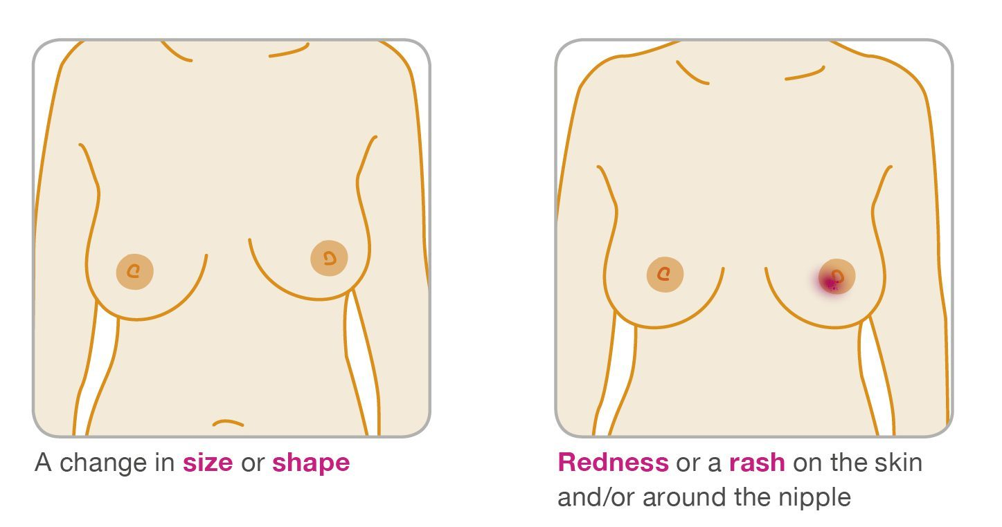The surprising breast cancer. Boobs clipart red mark