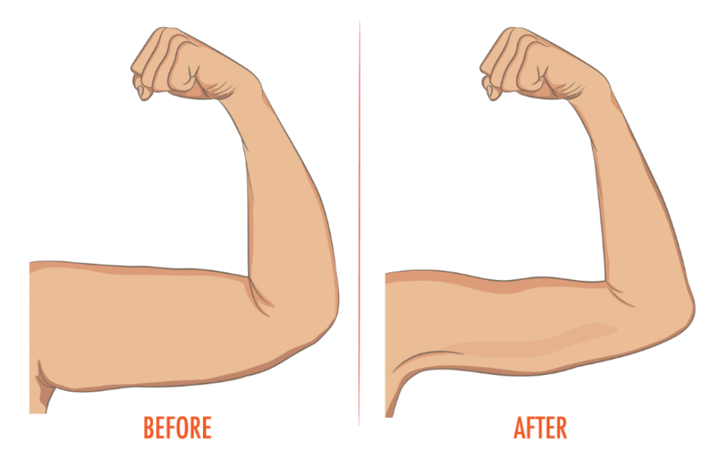 The best exercises to. Bra clipart straight arm
