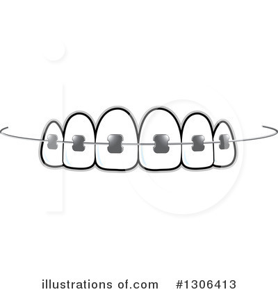 Illustration by lal perera. Braces clipart