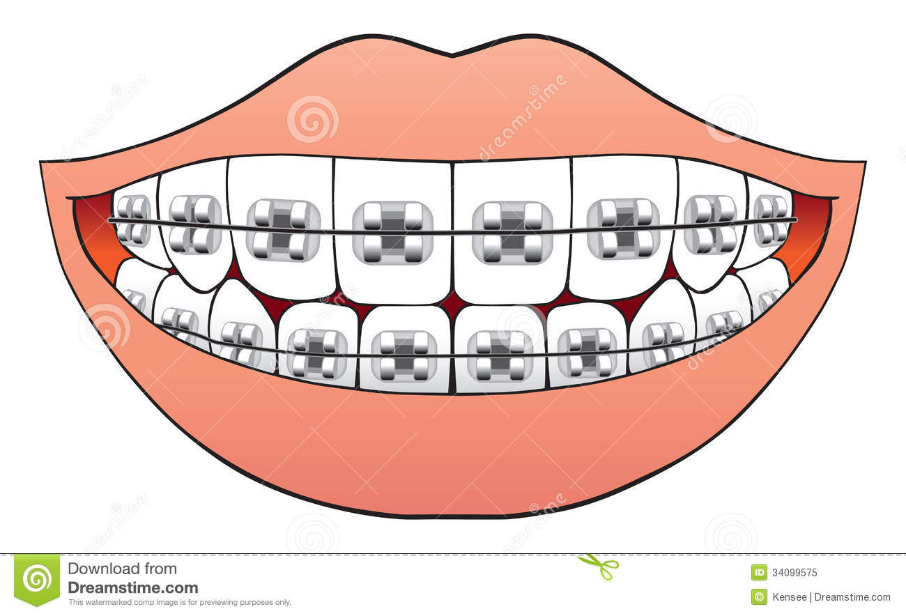 Braces clipart black and white. Teeth with