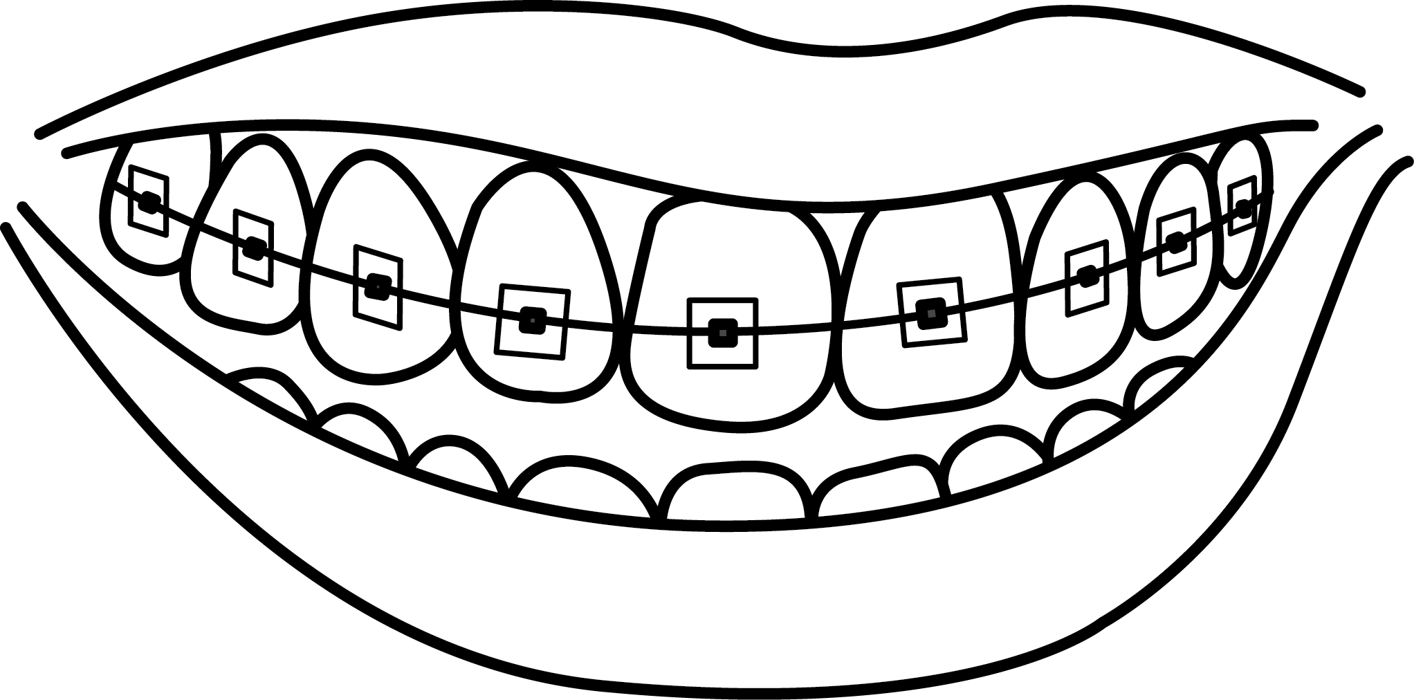 Braces clipart black and white. Dental dentistry human tooth