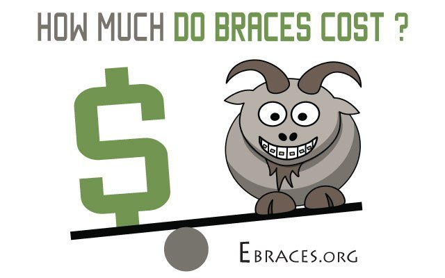 Braces clipart brand new. How much do cost