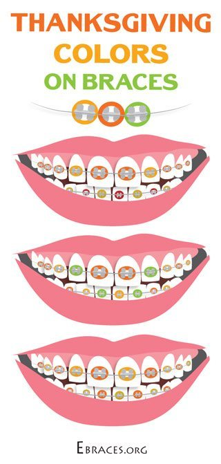 Braces clipart brand new. You don t have