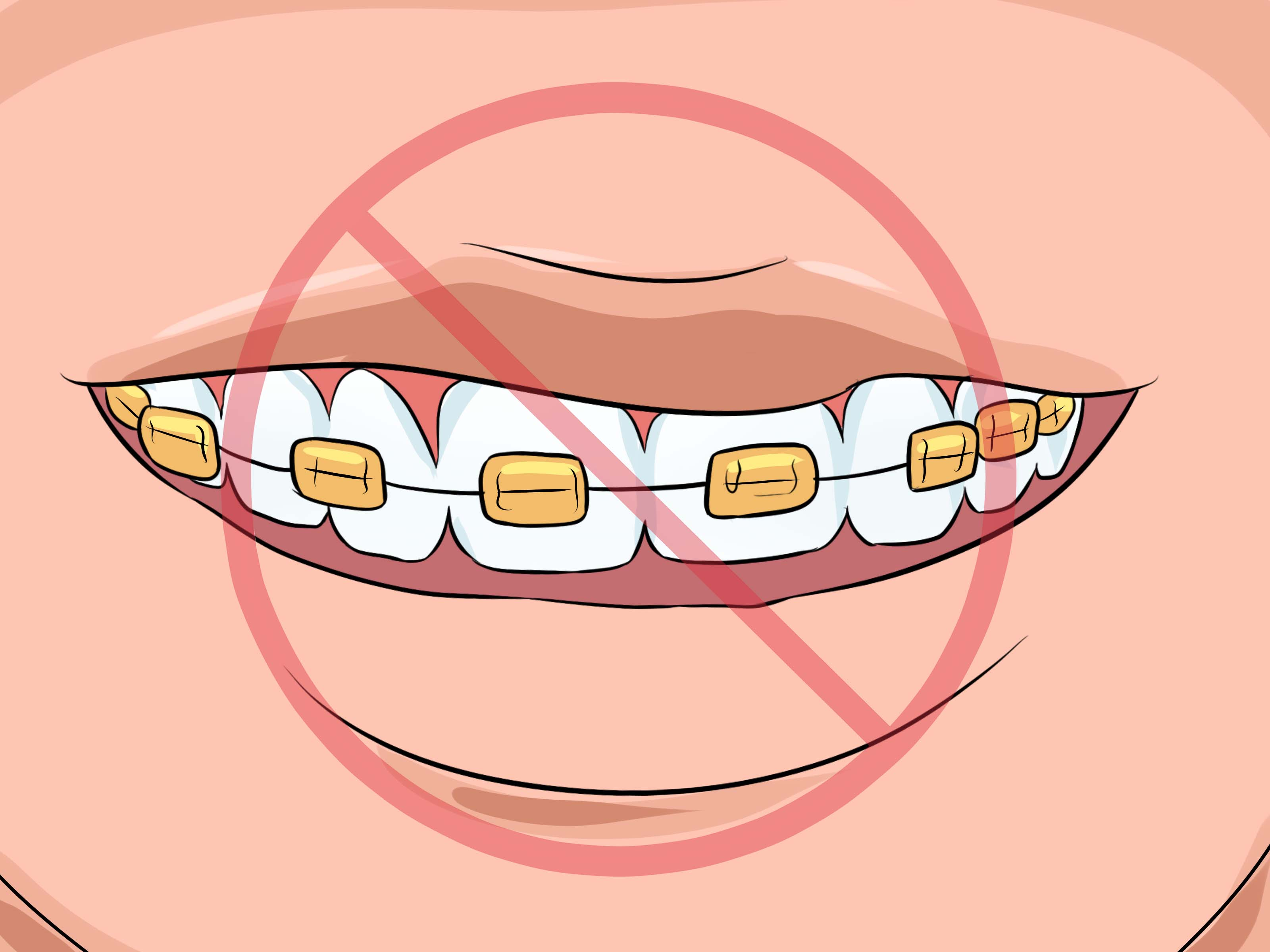 Braces clipart brand new. How to choose the