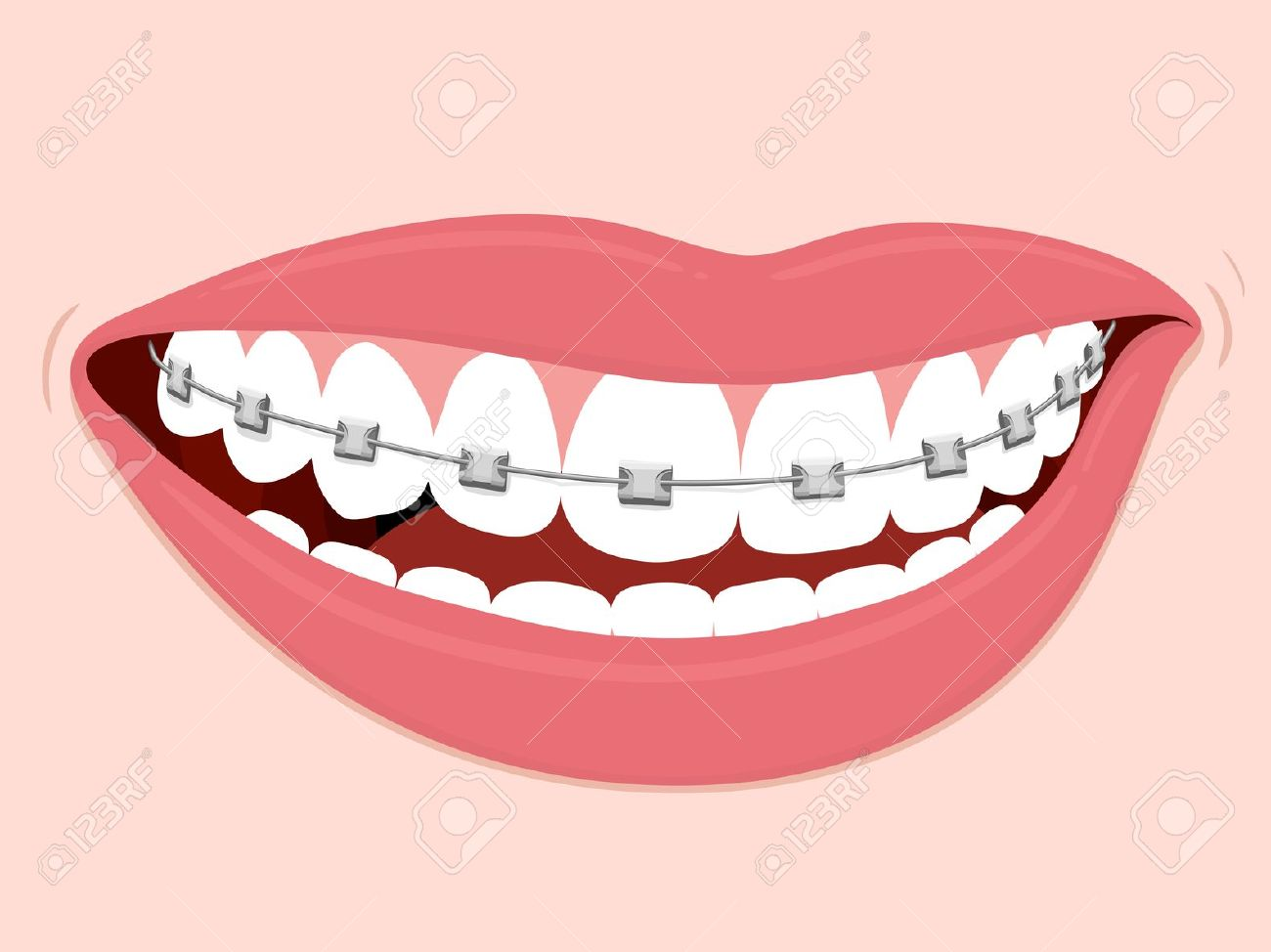 Braces clipart draw.  collection of smile