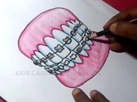 How to orthodontics teeth. Braces clipart draw