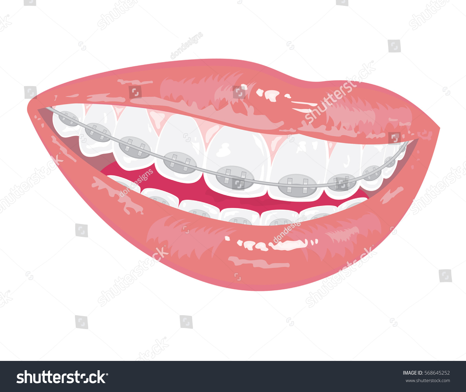 collection of smile. Braces clipart draw