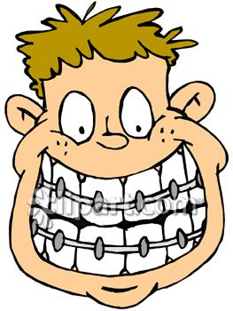 Drawing at getdrawings com. Braces clipart draw