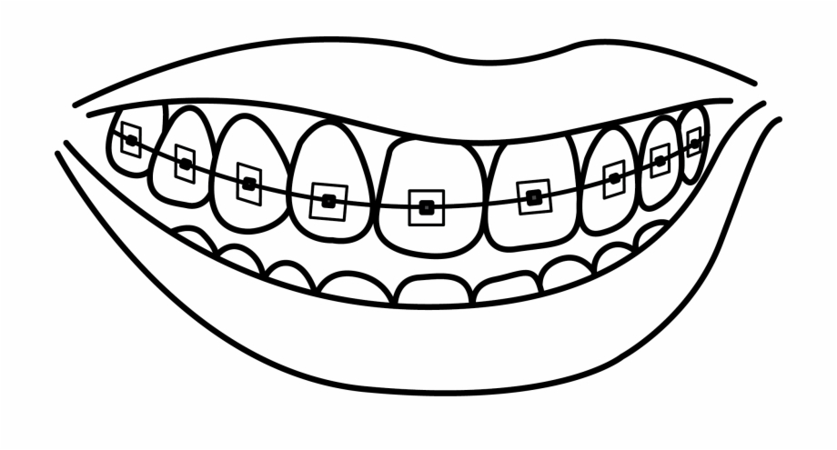 Braces clipart draw. Image free stock at