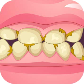 Braces clipart horrible. Bad teeth makeover