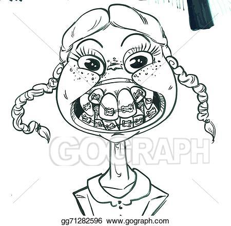 Vector stock illustration gg. Braces clipart horrible