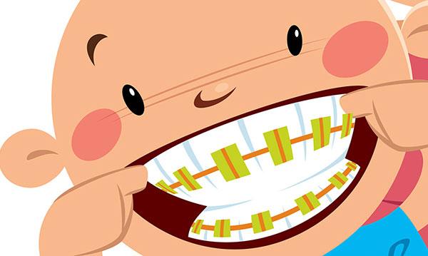 Diy trend puts kids. Braces clipart kid tooth