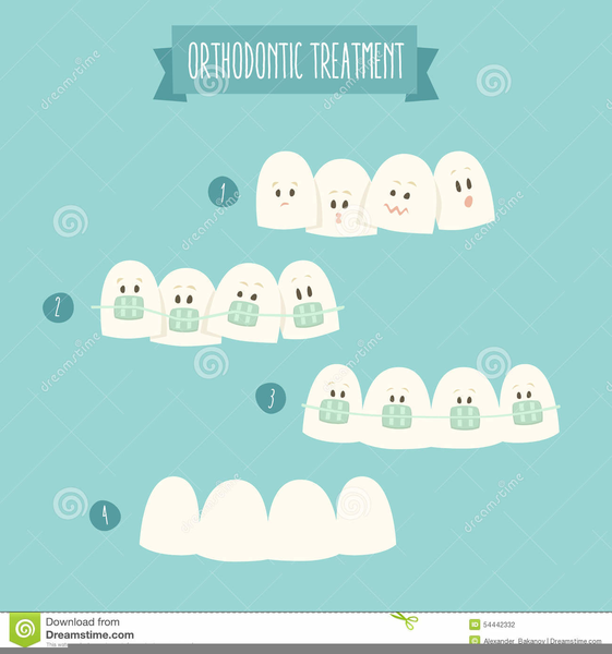 Orthodontic free images at. Braces clipart large