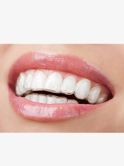 Tooth dentist corrective teeth. Braces clipart right