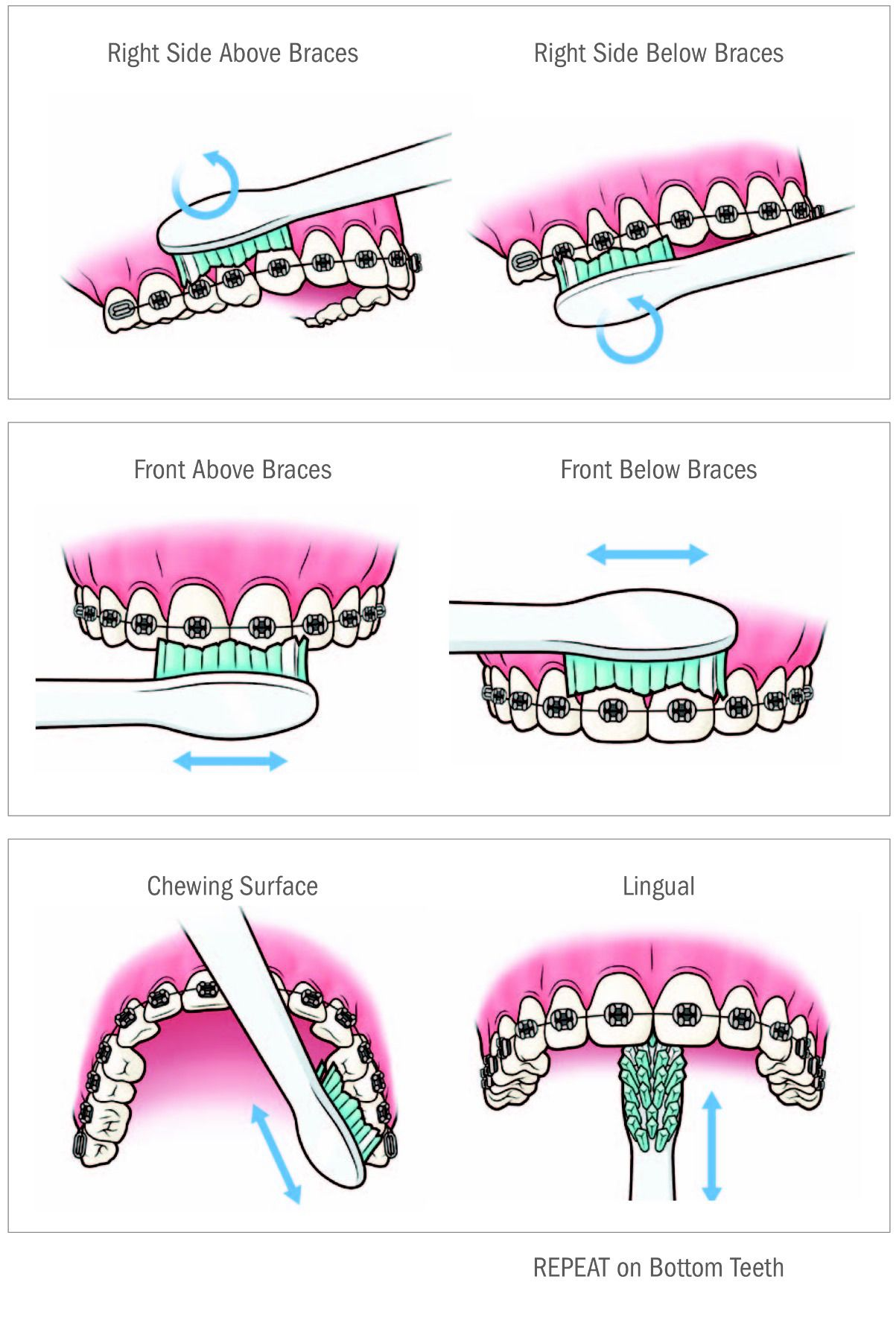 Braces clipart right. Healthy smiles both in