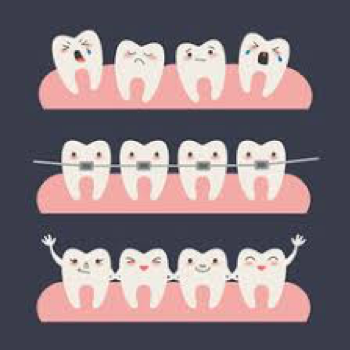 Braces clipart right. Traditional vs invisalign what