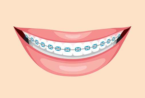 Free tooth cliparts download. Braces clipart smile