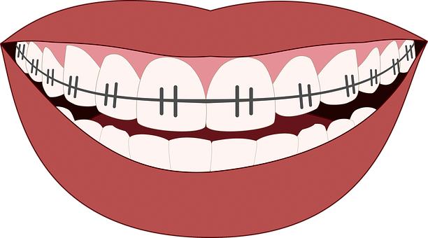 Braces clipart smile. The pros and cons