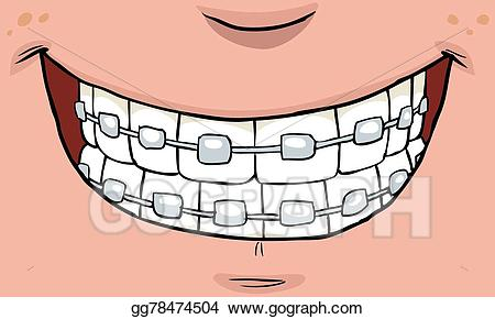 Braces clipart smile. Eps illustration with vector
