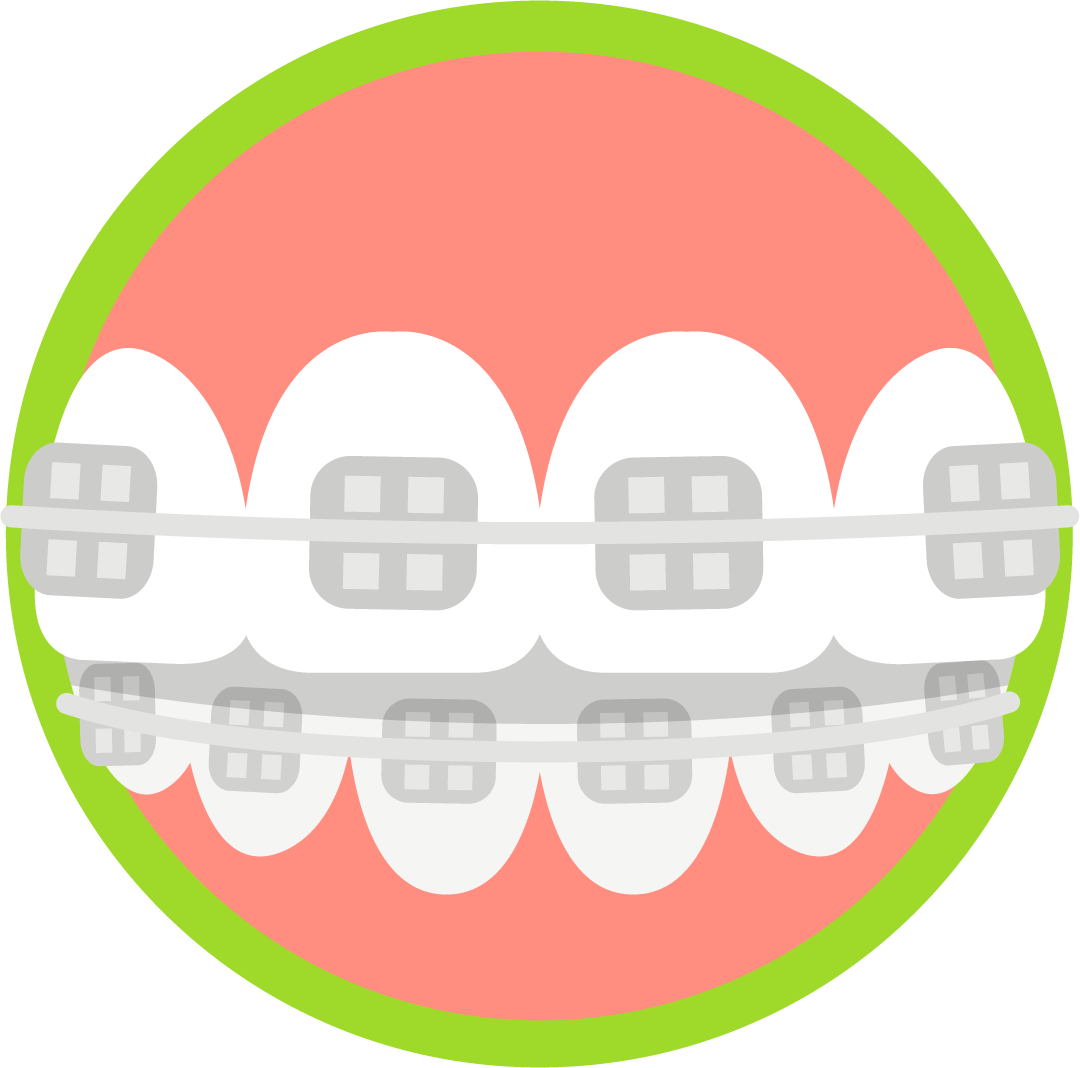 Clipart smile brace. Blue wave orthodontics invisalign