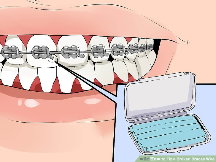 Braces clipart tooth brace. How to fix a
