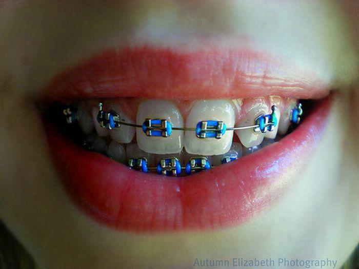 Braces clipart tooth brace.  best brackets images