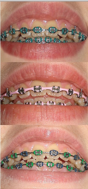 Braces clipart tooth brace.  best customized images