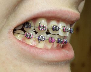 Braces clipart tooth brace. And pain for liv