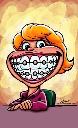 Braces clipart tooth brace.  best art images