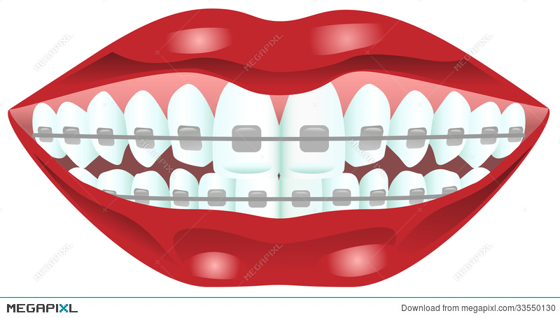 Teeth with illustration megapixl. Braces clipart tooth brace