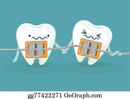 Clip art royalty free. Braces clipart tooth brace