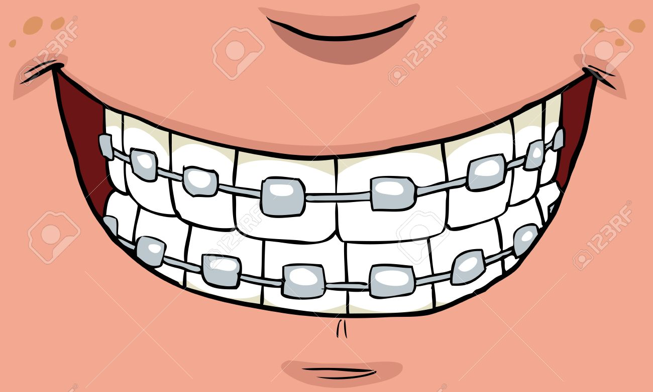 Braces clipart tooth brace. Cartoon free download best