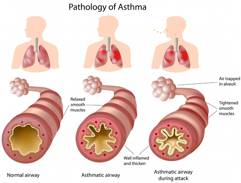 Breath clipart breathing difficulty. Asthma allergic shortness of