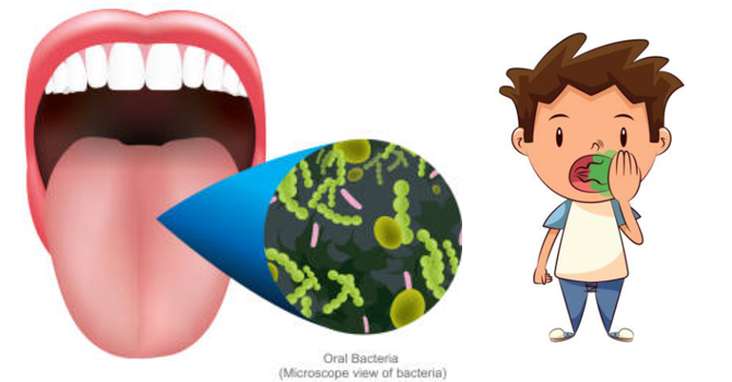 Five primary causes of. Breath clipart smelly breath