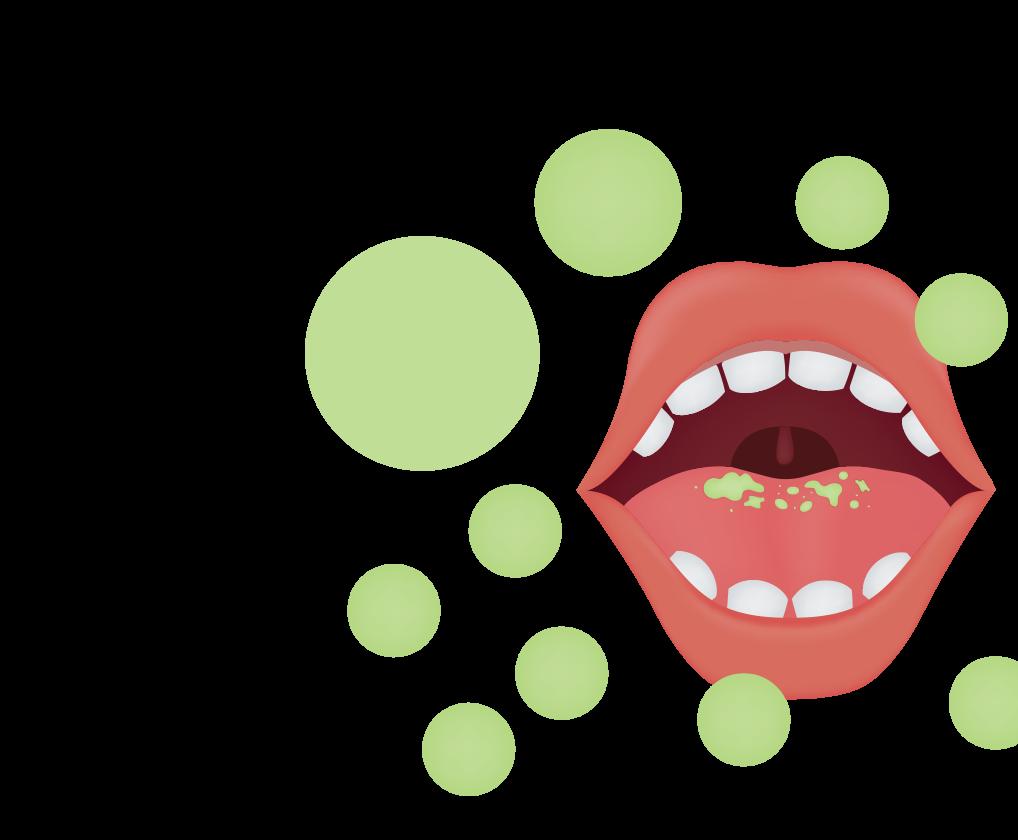 Breath clipart smelly breath. Bad advanced dental wellness