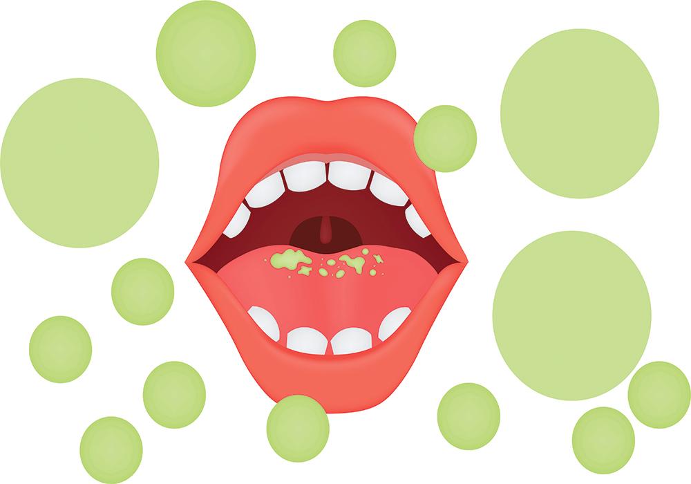 Healthy remedies archives get. Breath clipart unpleasant