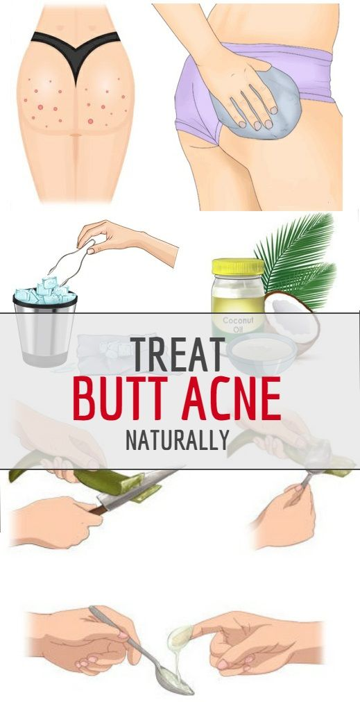 ways to treat. Butt clipart pimple