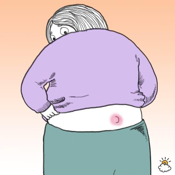 Pilonidal cyst causes treatment. Butt clipart pimple